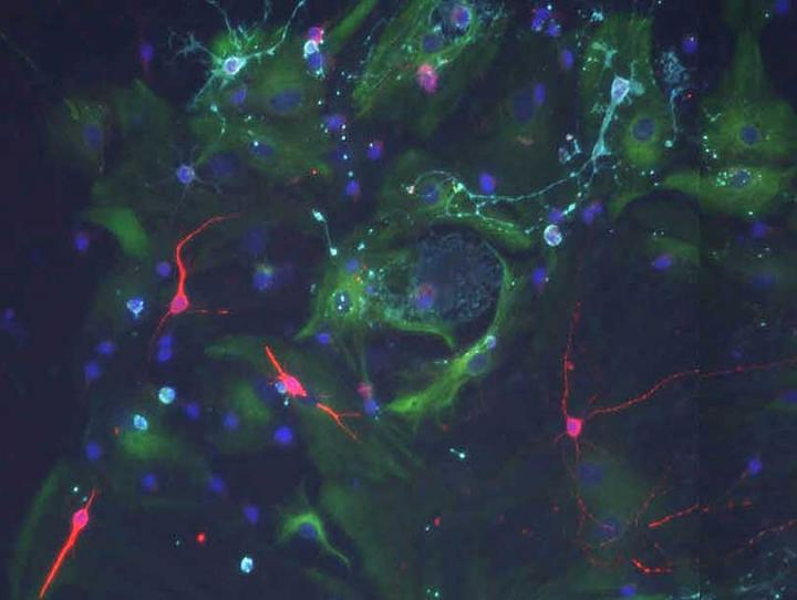 When stem cells from the old brain are cultured with signals of a young choroid plexus they can divide and form new neurons (red). Credit: Biozentrum, University of Basel